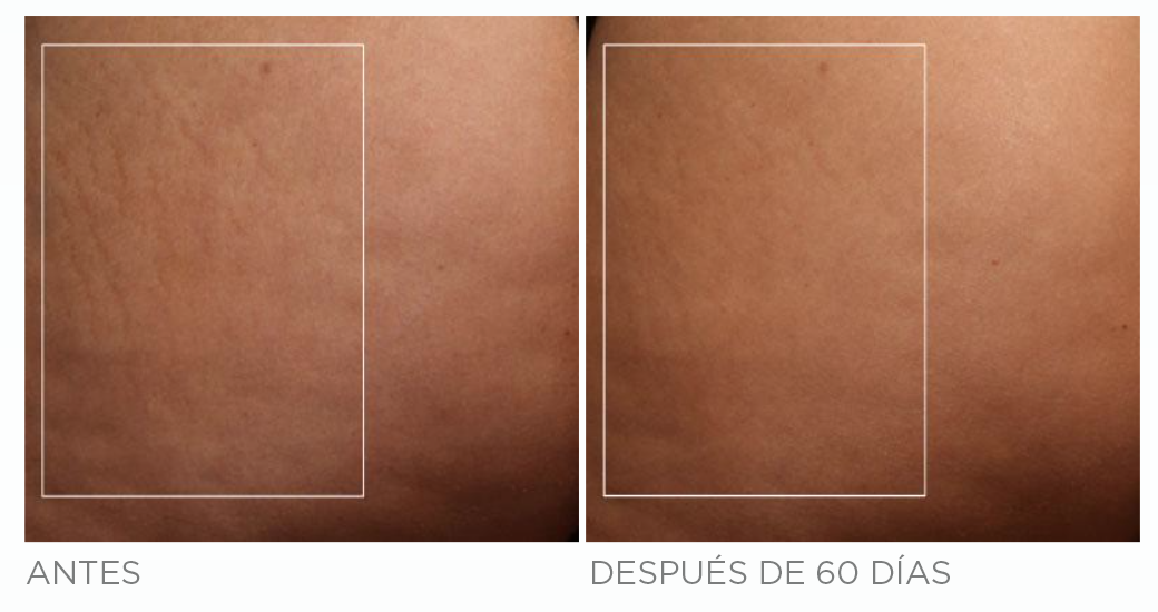 ANTES-DESPUES-nubody