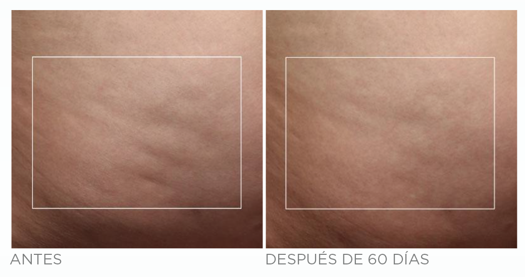 ANTES-DESPUES-nubody2